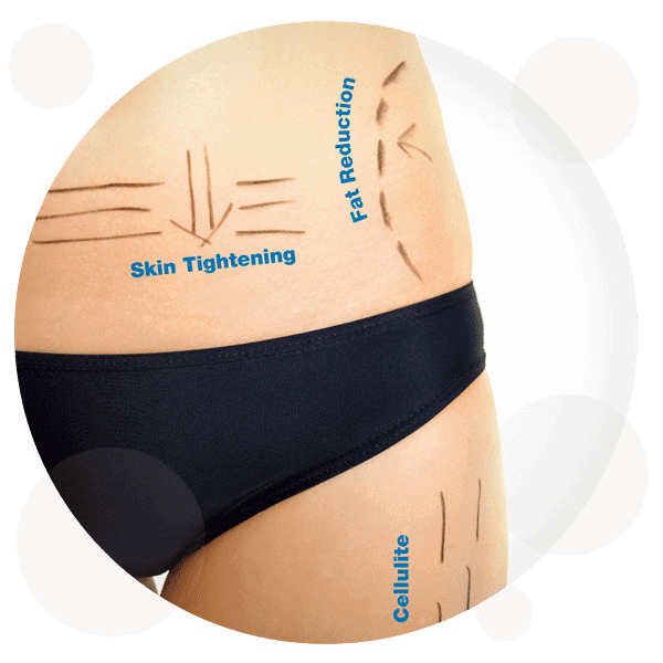 3D HIFU Body Treatments - RejuvaMed Skin Clinic